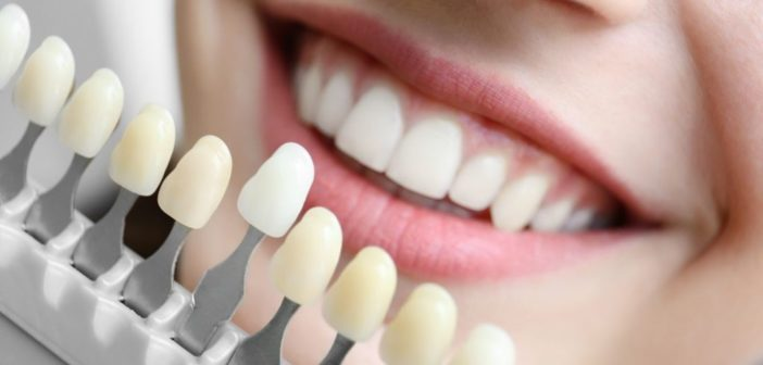Five Reasons to Consider Dental Implants